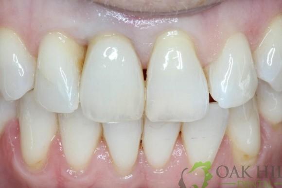 Gallery Dental Implants